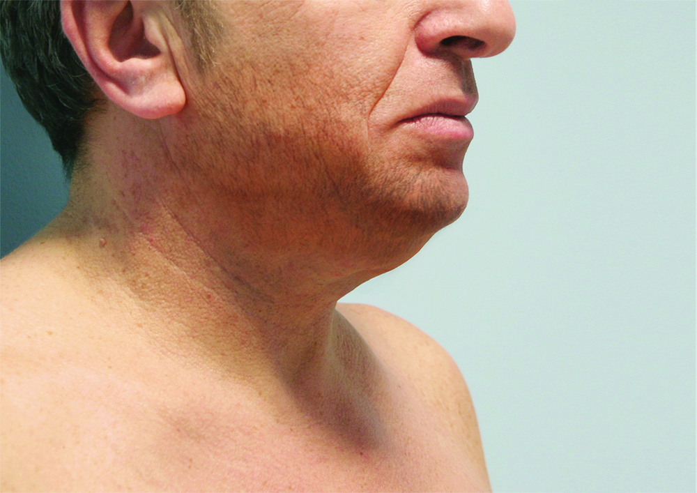 Blefaroplastica non chirurgica